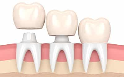 dental crowns in bella vista