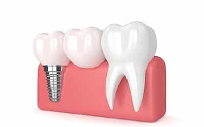 dental implants Baulkham Hills