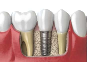 bone graft for dental implant bella vista